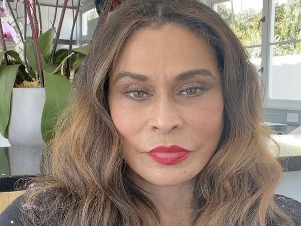 JAY-Z's Mom-In-Law Tina Addresses Beyoncé Leg Rumor